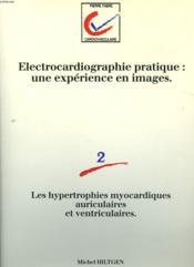 ELECTROCARDIOGRAPHIE PRATIQUE: UNE EXPERIENCE EN IMAGE. 2. Les hypertrophies myocardiques auriculaires et ventriculaires. - Couverture - Format classique