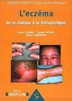Guide pratique de la dermatologie ; l'eczéma : de la clinique à la thérapeutique - Couverture - Format classique