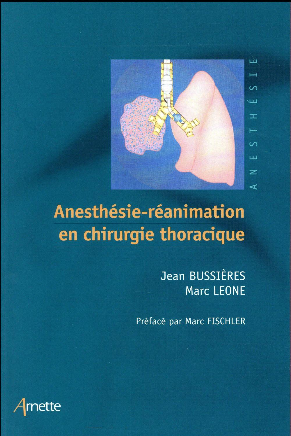 Anesthesie reanimation en chirurgie thoracique  - Bussieres/Leone