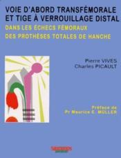 Voie Transfemorale Et Tige A Verrouillage Distal Dans Les Echecs Femoraux Des Pt - Couverture - Format classique