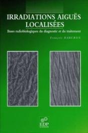 Irradiations Aigues Localisees - Couverture - Format classique