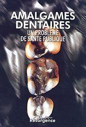 Amalgames Dentaires - Couverture - Format classique