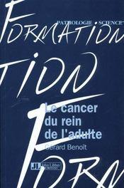 Cancer Du Rein De L'Adulte - Intérieur - Format classique
