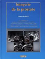 Imagerie de la prostate - Couverture - Format classique