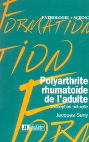 Polyarthrite Rhumatoide De L'Adulte. Conception Actuelle - Intérieur - Format classique