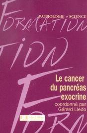 Le Cancer Du Pancreas Exocrine - Intérieur - Format classique