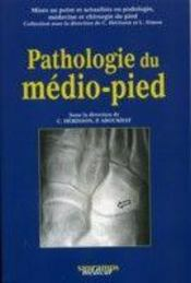 Pathologie du medio pied - Intérieur - Format classique