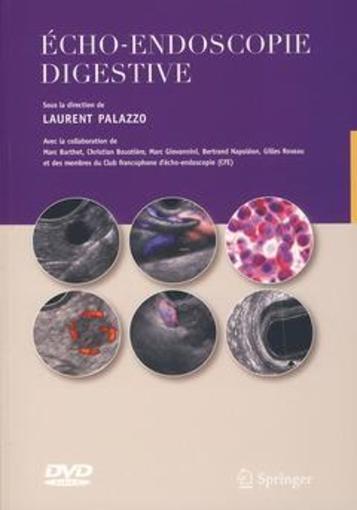Echo-endoscopie digestive 43549865_9696518