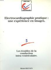 ELECTROCARDIOGRAPHIE PRATIQUE: UNE EXPERIENCE EN IMAGE. 3. Les troubles de la conduction intra-ventriculaire. - Couverture - Format classique