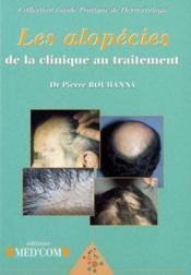 Les alopecies de la clinique au traitement - Couverture - Format classique