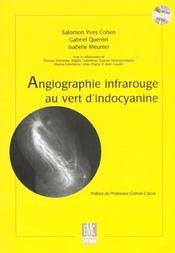 Angiographie infrarouge au vert d'indocyanine - Intérieur - Format classique