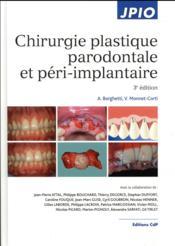 Chirurgie plastique parodontale et péri-implantaire (3e édition) - Couverture - Format classique