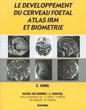 Le developpement du cerveau foetal, atlas irm et biometrie - Intérieur - Format classique