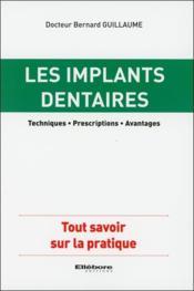 Les implants dentaires ; techniques, prescriptions, avantages - Couverture - Format classique