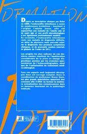 Les Endocardites Infectieuses - 4ème de couverture - Format classique