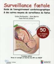 Surveillance foetale ; guide de l'enregistrement cardiotocographique & autres moyens de surveillance du foetus - Couverture - Format classique