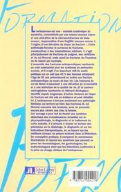 L'Osteoporose - 4ème de couverture - Format classique