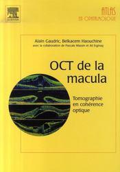 Oct de la macula ; tomographie en cohérence optique - Intérieur - Format classique