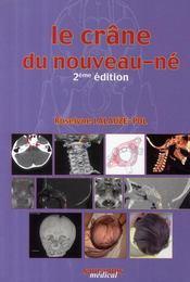 Le crâne du nouveau-né (2e édition) - Couverture - Format classique