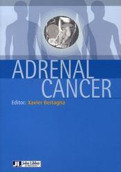Adrenal cancer - Intérieur - Format classique